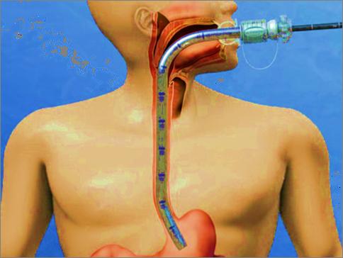 Capsule Endoscopy Treatment in Pune,Capsule Endoscopy in India