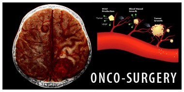 Oncology Centre in Pune, Onco Treatment in Pune, Onco Surgeon in Pune